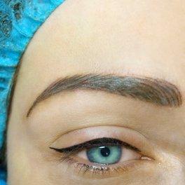 Horní oční linka